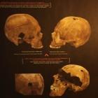 Характерные следы пуль на найденных черепах